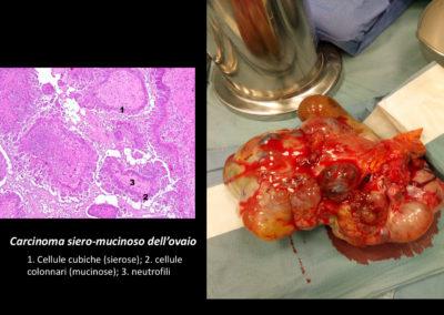 Intervento chirurgico di isterectomia totale extra- fasciale, annessiectomia bilaterale, omentectomia totale e asportazione di linfonodi pelvici per cistoadenocarcinoma sieroso (stadio III della classificazione FIGO).