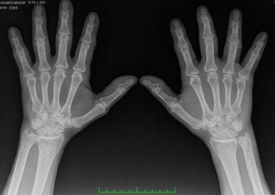 RADIOGRAFIA CONVENZIONALE: Non significative alterazioni osteo-articolari a carico di mani e polsi