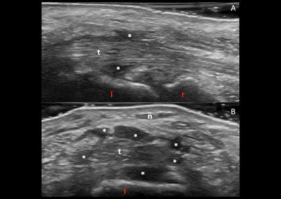 ECOGRAFIA:  La scansione longitudinale (A) e trasversa (B) della regione palmare della mano destra mostra ispessimento ipo-anecogeno dei tessuti molli limitrofi alla guaina dei tendini flessori delle dita a livello carpale (asterischi bianchi) , non compressibile, compatibile con tessuto fibrotico r = radio; l = semilunare, t = tendini flessori delle dita,  n = nervo mediano.