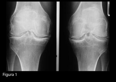 Radiografia delle ginocchia in proiezione antero-posteriore. Si evidenziano calcificazioni meniscali, bilateralmente.