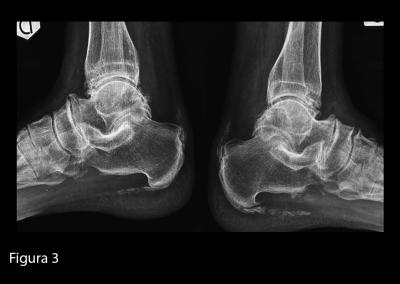 Radiografia delle caviglie in proiezione latero-laterale. Diffuse calcificazioni a livello delle entesi, delle articolazione intertarsiche e della articolazione tibio-peroneo-astragalica, bilateralmente.