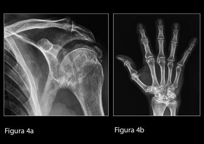 (a) Radiografia convenzionale della spalla sinistra in proiezione antero-posteriore. Si evidenziano diffuse calcificazioni a livello dei tessuti molli periarticolari e scapolo-omerali dell'articolazione scapolo-omerale.  (b) Radiografia convenzionale della mano destra. Si osservano calcificazioni del legamento triangolare del carpo e dei tessuti molli a livello delle articolazioni metacarpo-falangee ed inter-falangee prossimali