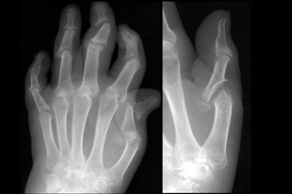 Le cinque cose da non ignorare sull'artrite psoriasica