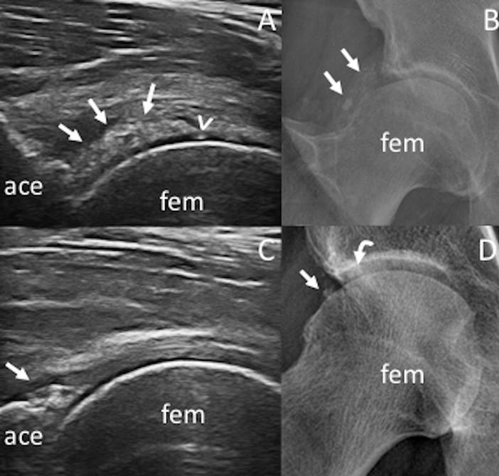 Sinovite dell'anca in paziente con artrite reumatoide – artrocentesi e infiltrazione