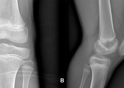 Figura 1. A, B: L'esame biproiettivo del ginocchio sinistro non mostra evidenti lesioni osteostrutturali con ipodiafania del recesso sottoquadricipitale, in relazione a versamento