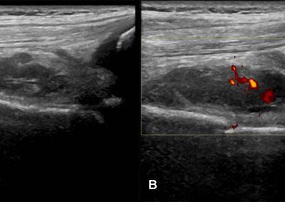 Figura 2. A, B: L'esame ecografico del ginocchio sinistro mostra una formazione ovalare disomogeneamente ipoecogena in sede sottoquadricipitale del diametro max. di cm 2,1 x 0,9 x 3 con segnali power-Doppler nel contesto.