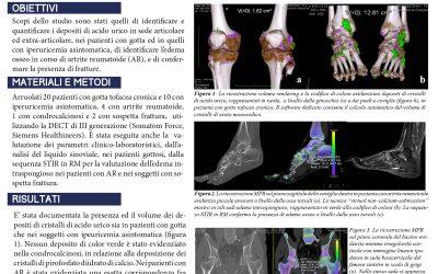 Utilità della TC dual energy (DECT) nello studio dell'apparato muscolo-scheletrico: caratterizzazione e quantificazione dei cristalli di urato monosodico, dell'edema osseo intraspongioso nell'artrite reumatoide e nelle sospette fratture