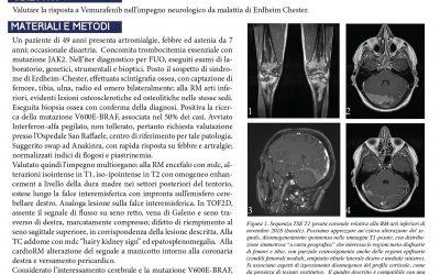 Sindrome di Erdheim-Chester ad impegno neurologico: rapida efficacia del trattamento con Vemurafenib