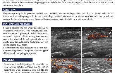 La valutazione ecografica della puleggia A1. Un nuovo target dell'infiammazione in corso di artrite psoriasica?